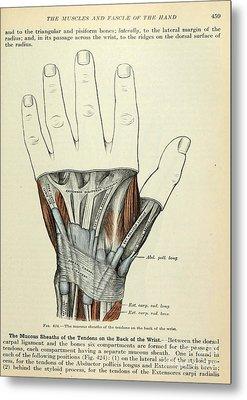 Anatomy Human Body Old Anatomical 84 Metal Print