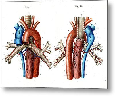 Aortic Arch Metal Print by Collection Abecasis