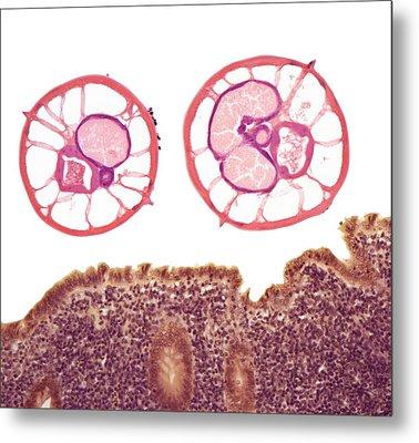 Appendicitis Due To Threadworm Infection Metal Print