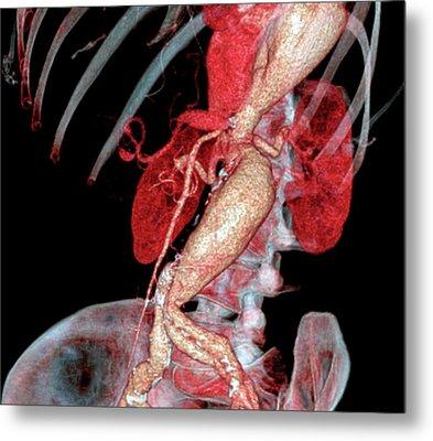 Arterial Aneurysms In Marfan Syndrome Metal Print by Zephyr