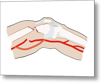 Arterial Bypass Metal Print by Jeanette Engqvist