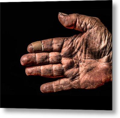 Arthritis  Metal Print