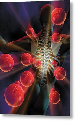 Back Pain Caused By Infection Metal Print by Harvinder Singh
