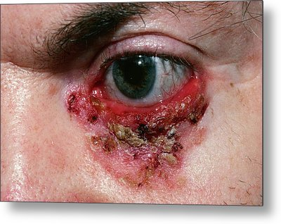 Basal Cell Carcinoma Metal Print by Microscape
