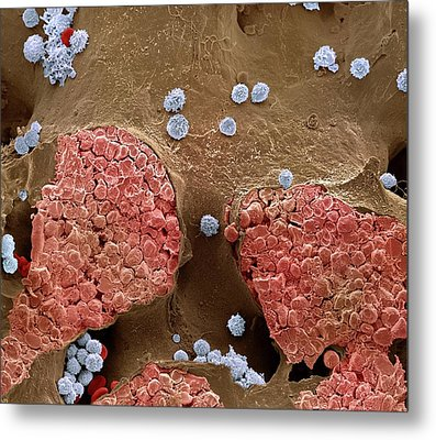 Bone Marrow Metal Print
