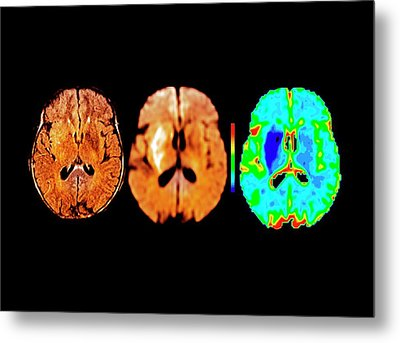 Brain In Ischemic Stroke Metal Print