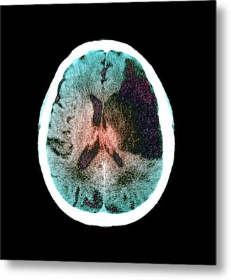 Brain In Stroke Metal Print