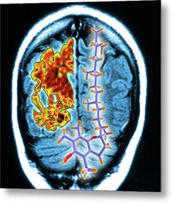 Brain Mri Scan And Vitamin E Molecule Metal Print by Alfred Pasieka