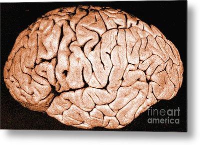 Brain Of Helen Hamilton Gardener Metal Print by Science Source