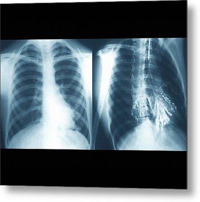 Bronchiectasis Metal Print