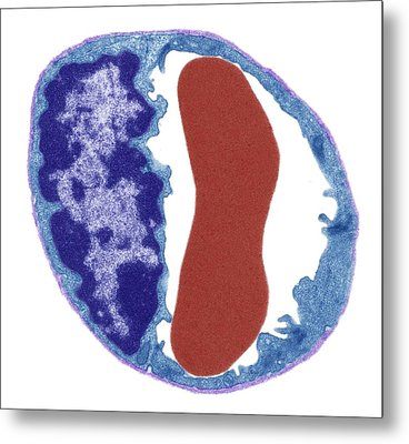 Capillary And Red Blood Cell Metal Print