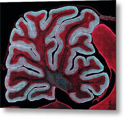 Cerebellum From A Brain Metal Print by Thomas Deerinck, Ncmir