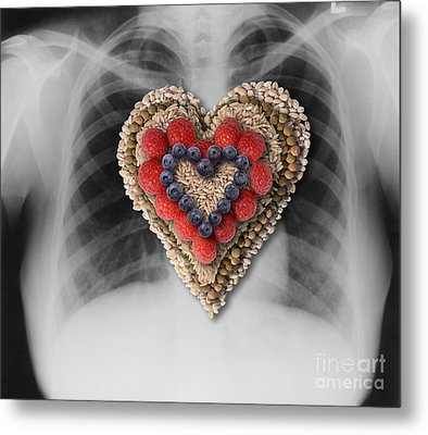 Chest X-ray & Heart-healthy Foods Metal Print by Gwen Shockey