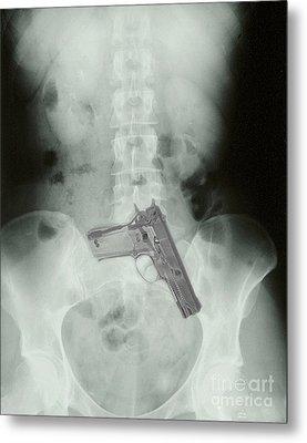 Chest X-ray Showing Hidden Gun Metal Print