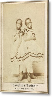 Conjoined Twins Metal Print