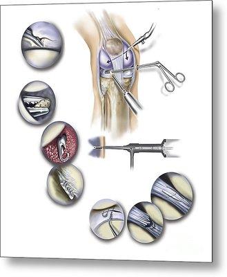 Detail Of Human Knee Showing Metal Print