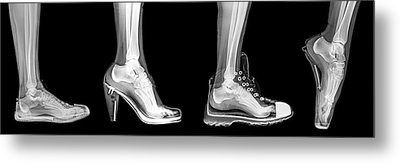 Different Shoes X-ray Metal Print by Photostock-israel