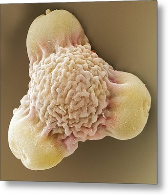 Evening Primrose Pollen, Sem Metal Print by Power And Syred