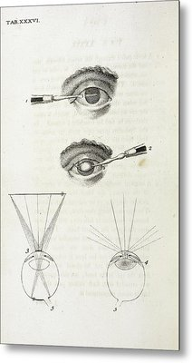 Eye Surgery Metal Print by British Library
