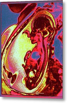 Foetus In Uterus Metal Print by Larry Berman