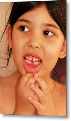 Girl With Missing Tooth Metal Print by Photostock-israel