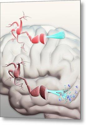 Healthy And Alzheimer's Neurons Metal Print by Gunilla Elam