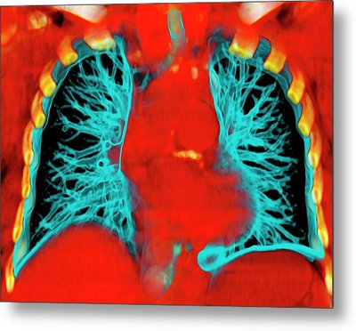 Healthy Lungs Metal Print