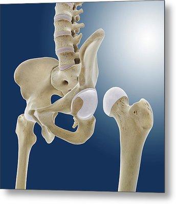 Hip Anatomy Metal Print