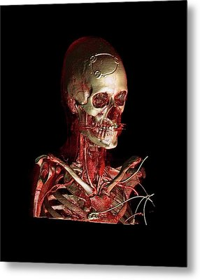 Human Skull And Chest Metal Print