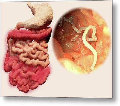 Human Tapeworm Infection Metal Print