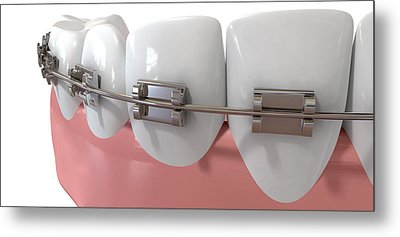 Human Teeth Extreme Closeup With Metal Braces Metal Print by Allan Swart