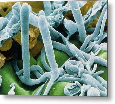 Hyphae And Asci Of Sphaerotheca Mildew Metal Print by Power And Syred