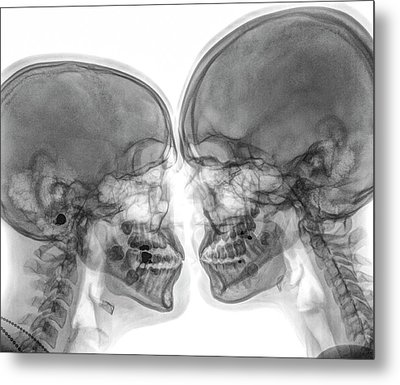Kissing Couple. Metal Print by Photostock-israel