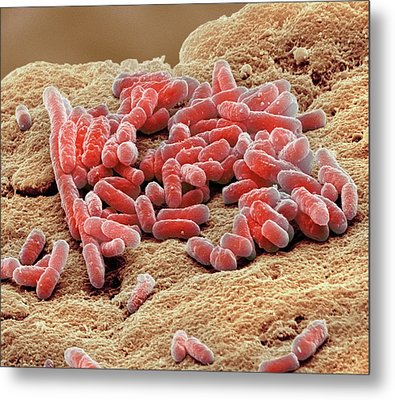 Lactobacillus Bacteria Metal Print by Steve Gschmeissner