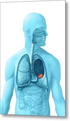 Lung Cancer Metal Print by Carol & Mike Werner