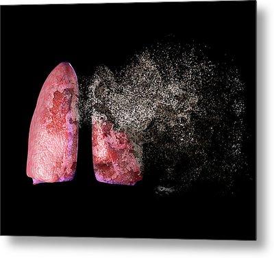 Lung Disease Metal Print by Christian Darkin