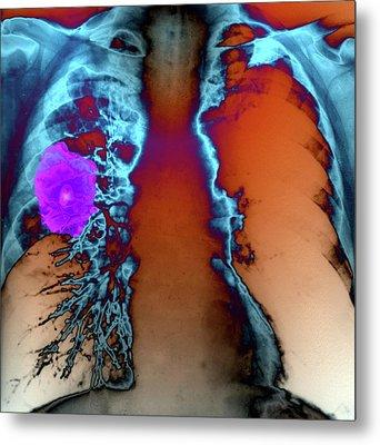 Lung Tumour Metal Print