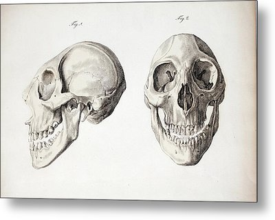 Microcephalic Skull Flores Man Zika Virus Metal Print