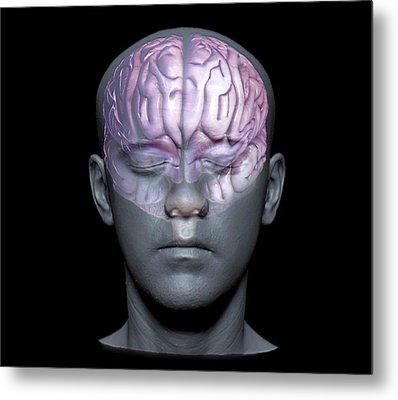 Normal Brain Metal Print