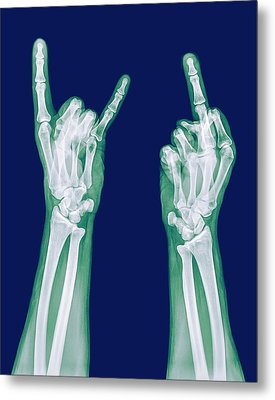 Obscene Gestures X-ray Metal Print by Photostock-israel