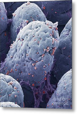 P5200228 - Intestinal Lining Sem Metal Print by Spl