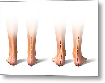 Pronation Of The Feet. Artwork Metal Print by Science Photo Library