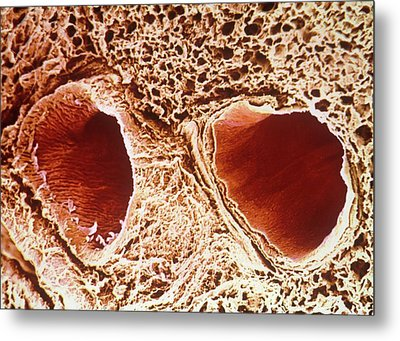 Pulmonary Vein And Artery Metal Print