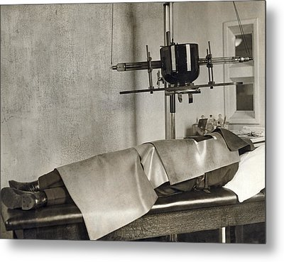 Radiation Cancer Treatment Metal Print by Underwood Archives