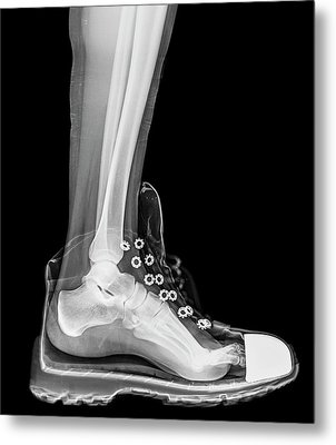 Running Shoe X-ray Metal Print by Photostock-israel