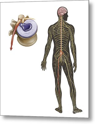 Sciatica Caused From Herniated Disc Metal Print