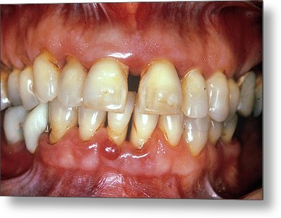 Severe Gum Disease Metal Print