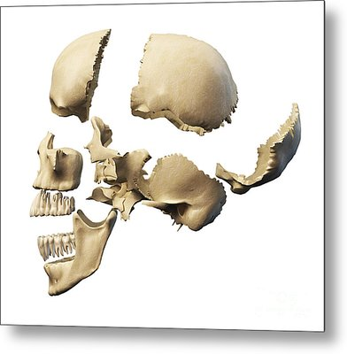 Side View Of Human Skull With Parts Metal Print by Leonello Calvetti