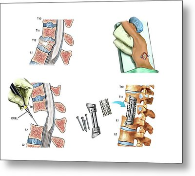 Surgery To Fuse The Thoracic Spine Metal Print by John T. Alesi