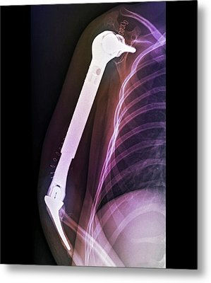 Total Upper Arm Bone Replacement Metal Print by Zephyr